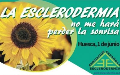 Resumen Jornada Médica #DMEsclerodermia19 en Huesca