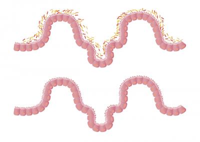 Nutrición y Microbiota