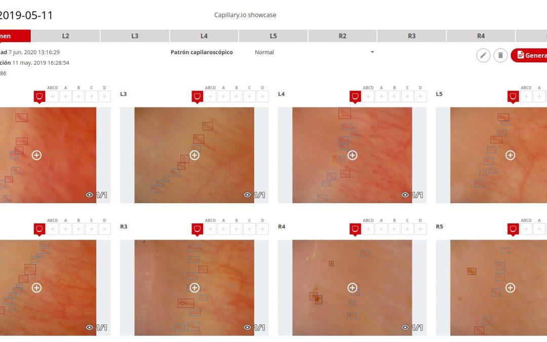 SEMI, Capilaroscopia e Inteligencia Artificial